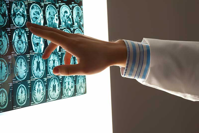 Traumatic-brain-injury-accidents
